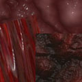 Красно-коричневые туманы